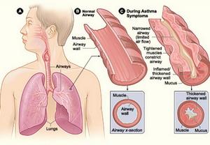 symptoms-asthma